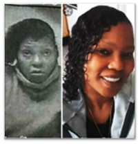 Trina before and after picture